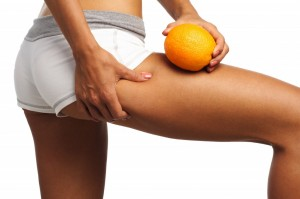 What-causes-cellulite-1024x682